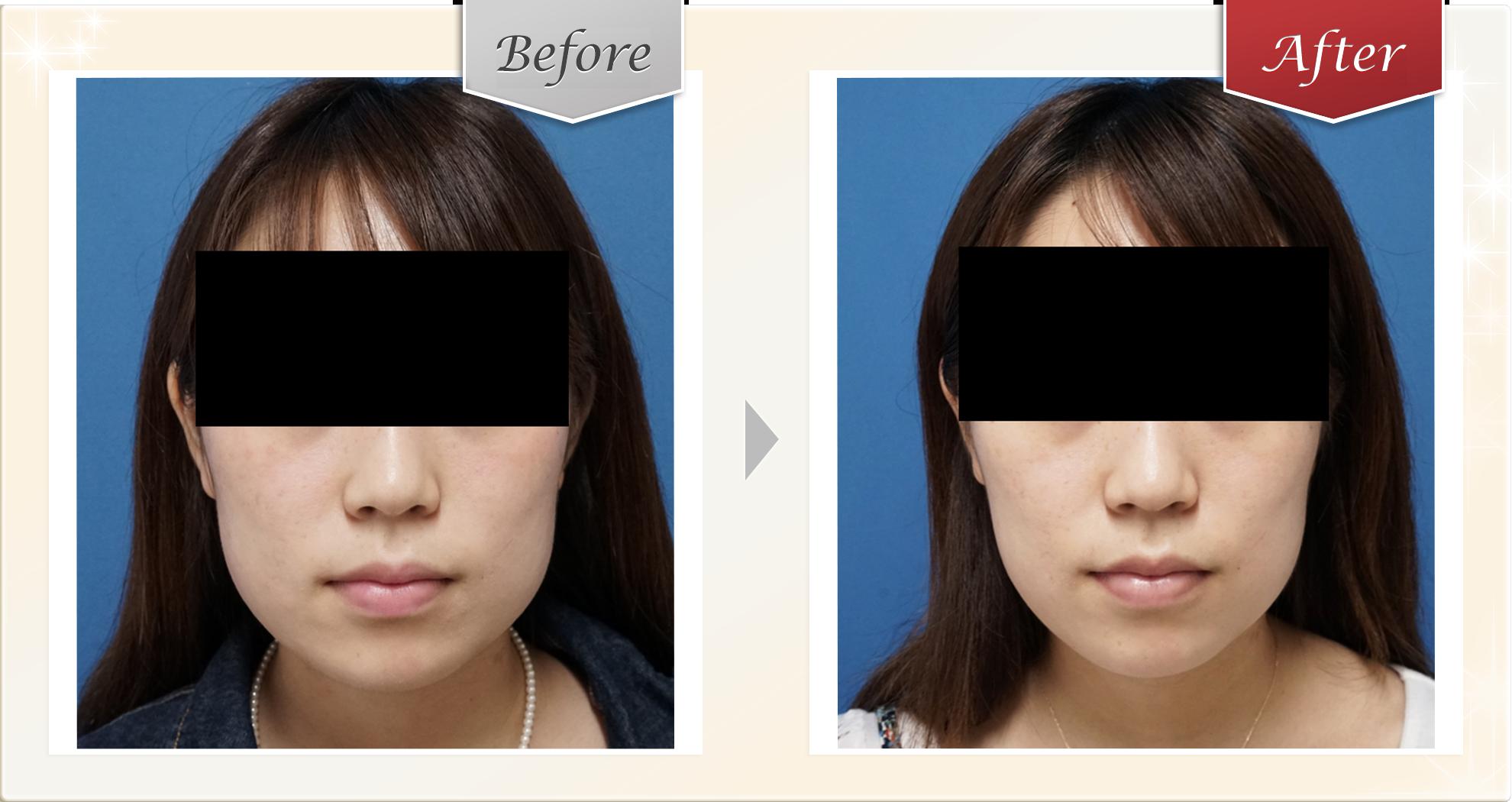プチ小顔セット症例1