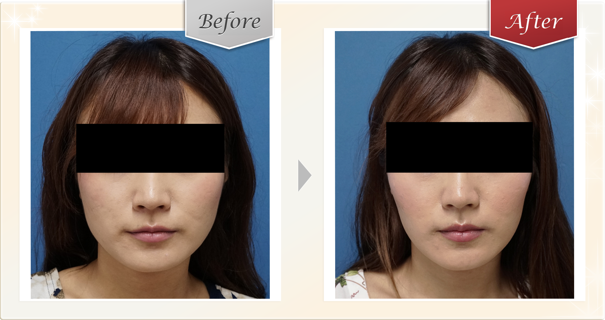 プチ小顔セット症例2