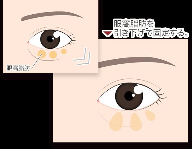 裏ハムラ 切開 目の下の脂肪を固定