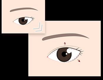 切らないデカ目3点 二重 眼瞼下垂 タレ目
