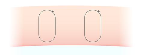 二重埋没法 腫れにくい二重術 断面