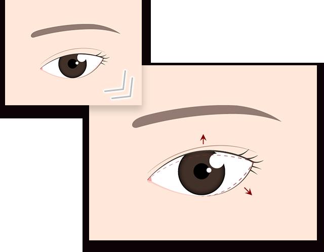 切らないデカ目2点セット 眼瞼下垂 タレ目