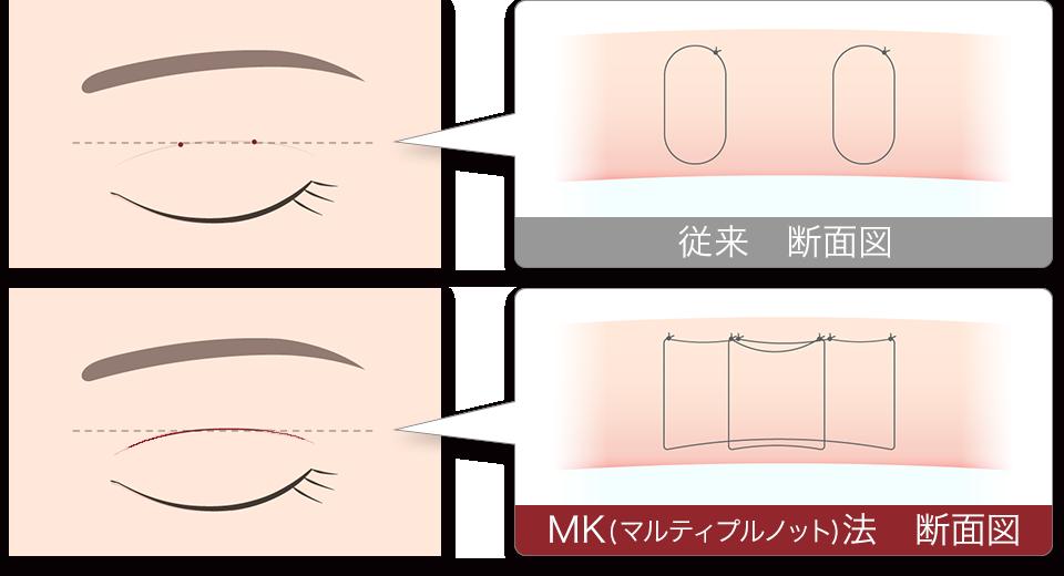 マルティプルノット法 二重術 断面図