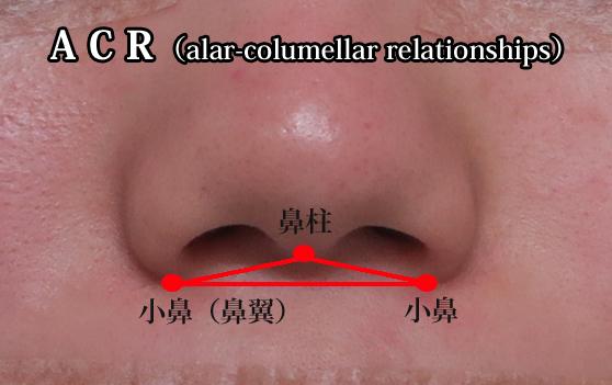 鼻中隔延長 ACR
