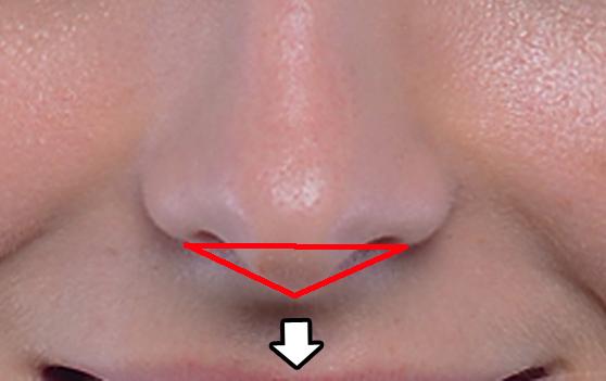 鼻中隔延長 ACR 美しい鼻先