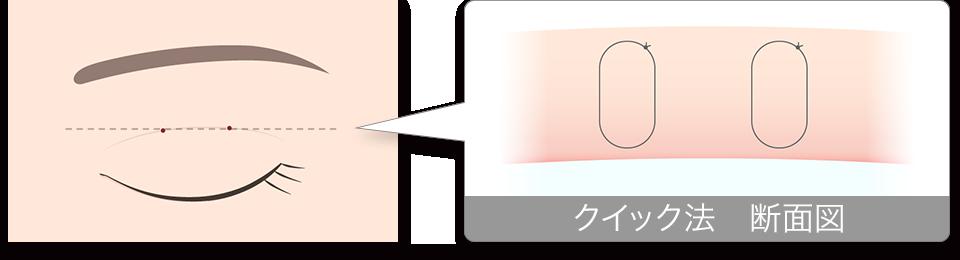 二重埋没法 クイック法 断面図