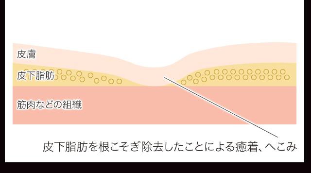 小顔脂肪吸引 癒着 デコボコ