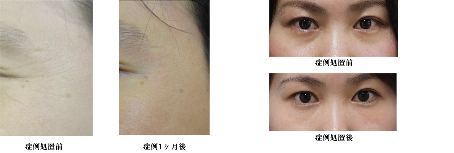 FGF再生療法 症例写真 線維芽細胞