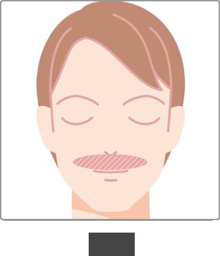 脱毛 部位 口髭