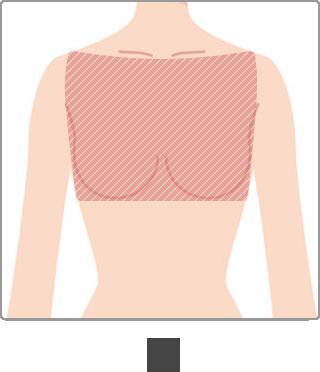 脱毛 部位 胸