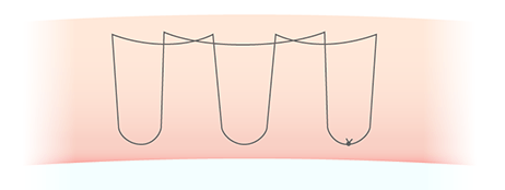 二重埋没法の糸のかけ方の図(もとびアイプラチナム)