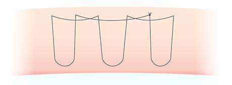 二重埋没法の糸のかけ方(もとびアイゴールド)