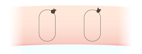 二重埋没法(2点止め)の断面図