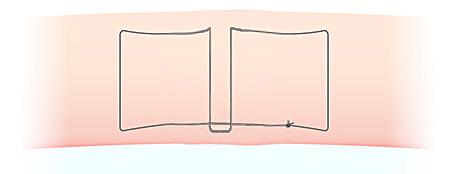 二重埋没法の糸のかけ方の図(スマートバランス)