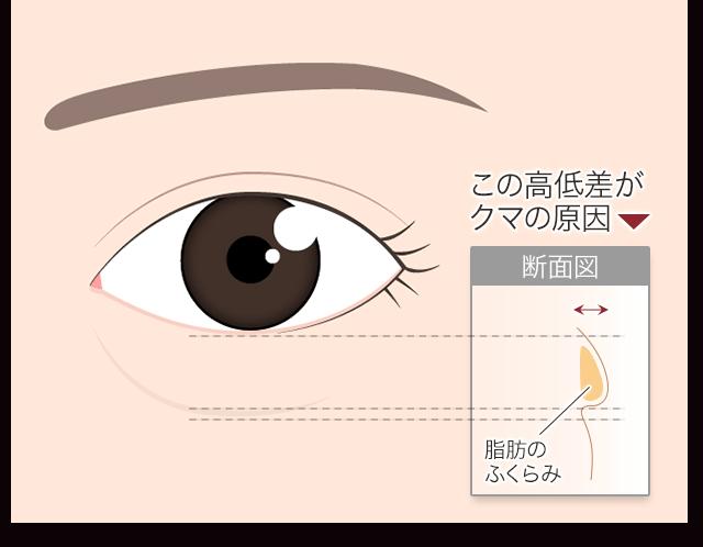 back_hamura-01