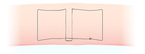 埋没法(スマートバランス)の結び方