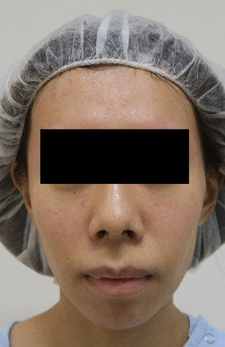 1888 お顔を卵形に美しく!脂肪注入(ゴルゴ・ホホ・こめかみ)手術前 フェイスライン