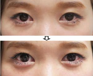 涙袋ヒアルロン酸-症例写真