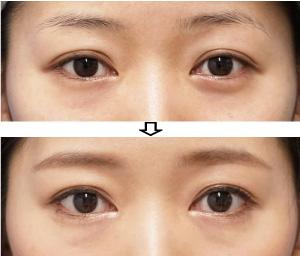 目尻切開-症例写真1