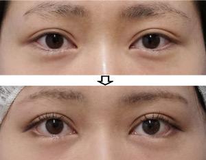 下眼瞼下制-切るタレ目-症例写真2