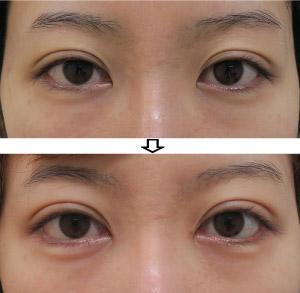 下眼瞼下制-切るタレ目-症例写真1