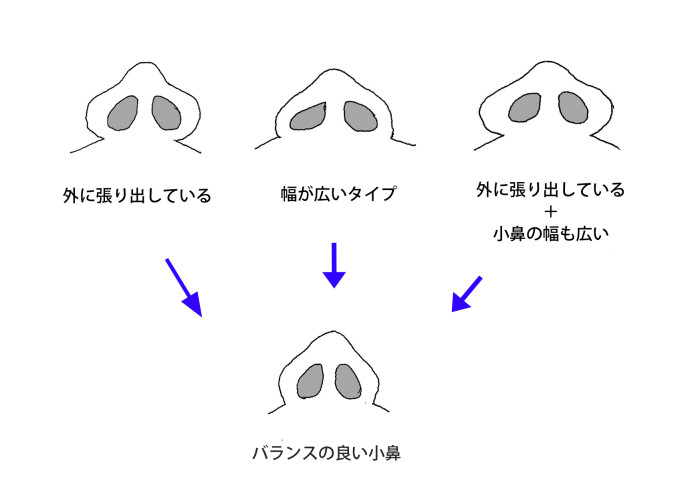 小鼻の種類