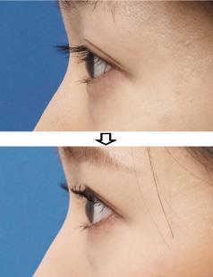 目尻切開-症例写真2