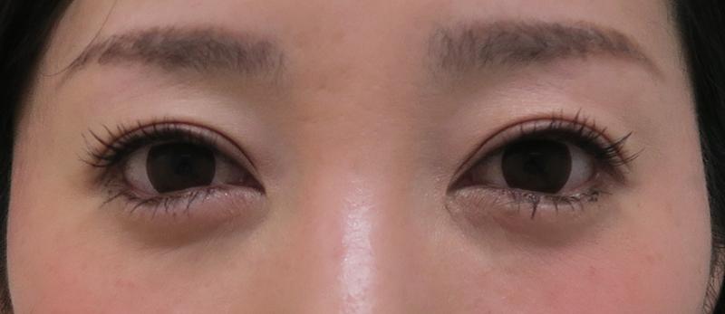 目尻切開、下眼瞼下制、目の下脂肪取り1ヶ月後