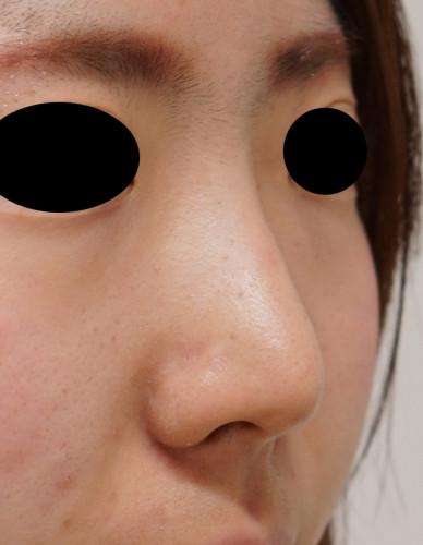 鼻尖形成(3D法)、flap法 1ヶ月後 右斜め