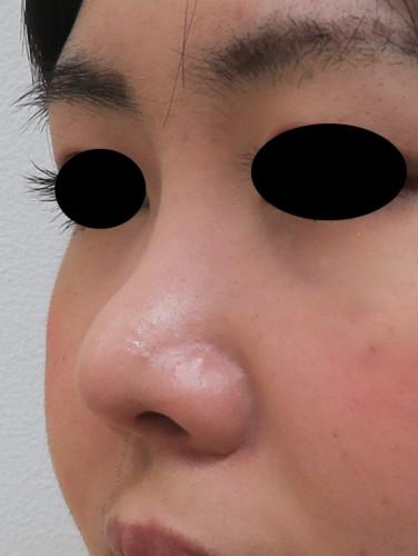 鼻尖形成、軟骨移植(耳珠) 1か月 正面