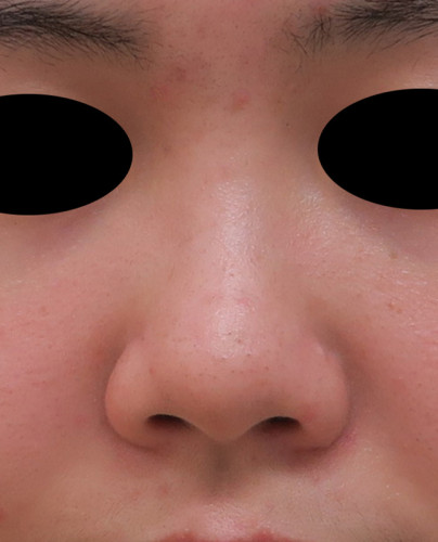 鼻尖形成、軟骨移植(耳珠) 正面 手術前