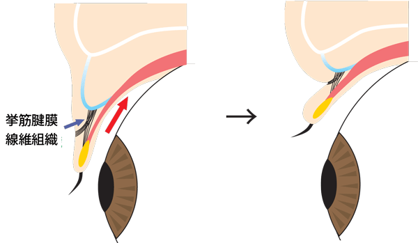 二重まぶたの目を開いたり閉じたりしたときの断面図