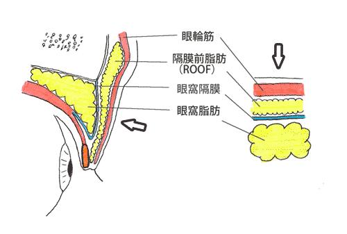 上瞼の筋肉や脂肪の構造(断面図)