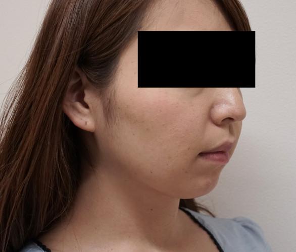 切らずに超強力な小顔効果!切らない強力小顔3点セット 1ヶ月後 右斜め