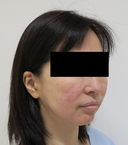 もとび式フェイスリフト 脂肪吸引(ホホ・ホホ骨) 手術前 右斜め