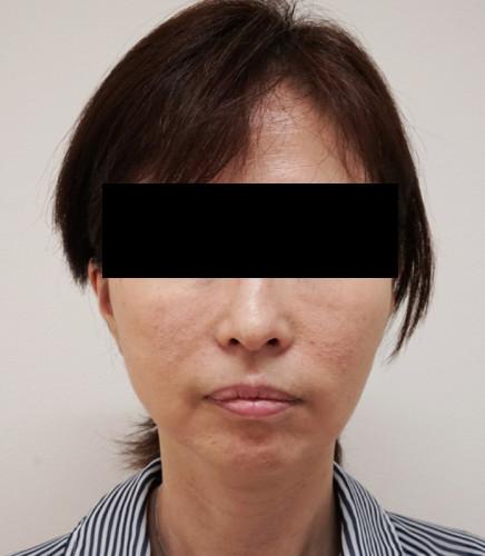 もとび式フェイスリフト 脂肪吸引(ホホ・ホホ骨) 3ヶ月後 正面
