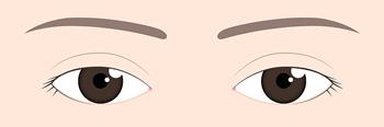 眼瞼下垂のイラスト