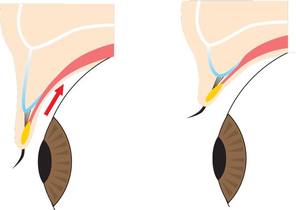 上瞼を開いたり閉じたりしたときの断面図