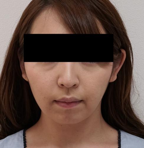 切らずに超強力な小顔効果!切らない強力小顔3点セット 1ヶ月後 正面