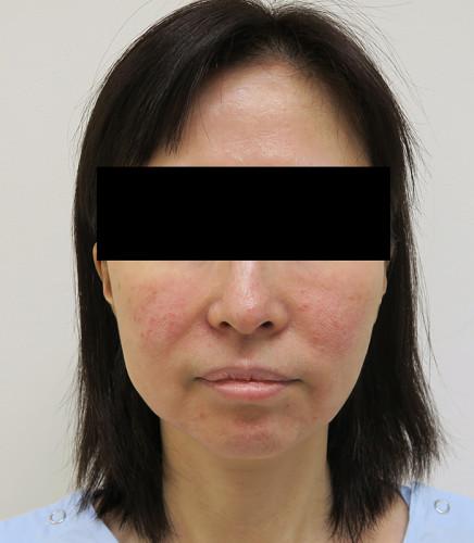 もとび式フェイスリフト 脂肪吸引(ホホ・ホホ骨) 手術前 正面