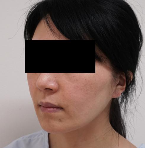 もとび式フェイスリフト(ホホ) 左斜め 手術前