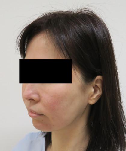 もとび式フェイスリフト 脂肪吸引(ホホ・ホホ骨) 手術前 左斜め
