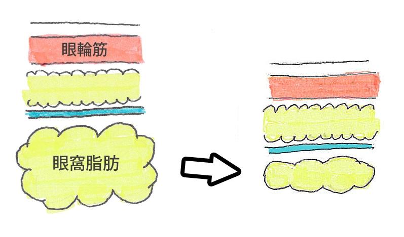 厚み取り図1