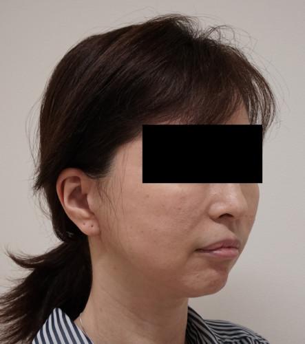 もとび式フェイスリフト 脂肪吸引(ホホ・ホホ骨) 3ヶ月後 右斜め