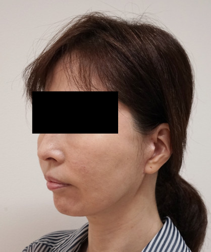もとび式フェイスリフト 脂肪吸引(ホホ・ホホ骨) 3ヶ月後 左斜め