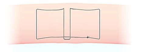 埋没法の糸のかけ方(スマートバランス)