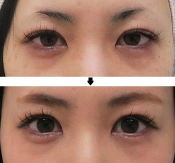 切らない眼瞼下垂-術前術後写真
