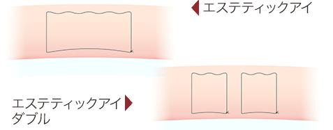 二重埋没法の糸のかけ方の図(エステティックアイ)