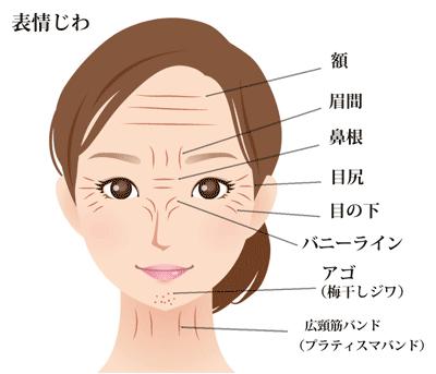 しわ治療の基本-表情じわ名前