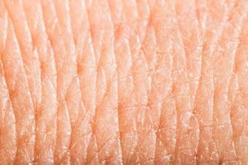 ハリ キメ 小じわ 肌の老化